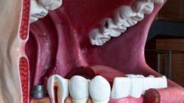 Tag der Zahngesundheit 2015 im AlleeCenter in Gr?nau. Foto: www.organmodelle.de